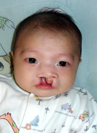 Zhao Jing Ping before the surgery