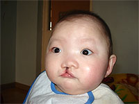 5 children will be able to receive cleft lip/palate surgeries