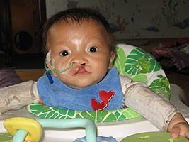 Hu Jian Lu before his cleft lip surgery