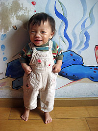 Hu Jian Lu after the cleft lip surgery