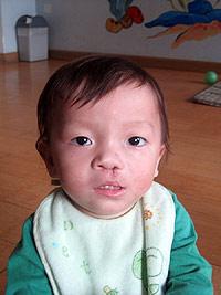 Hu Jian Lu after the cleft lip surgery